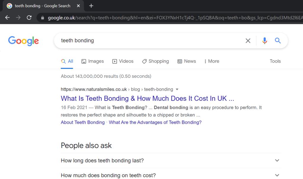 natural smiles ranked #1 for teeth bonding