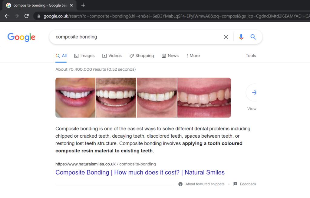 natural smiles ranking #1